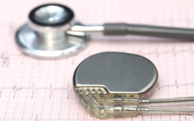 Come funziona il pacemaker