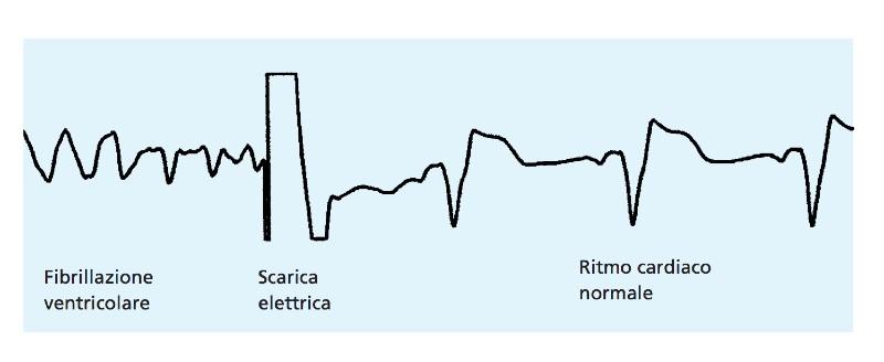 defibrillatore cardiaco impiantabile